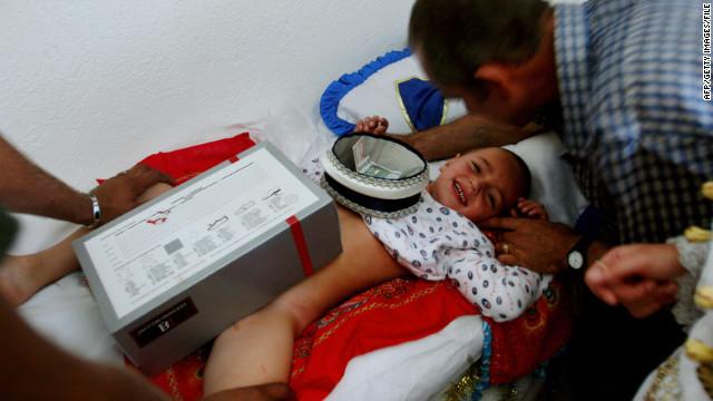 Как сделать ребенку обрезание
