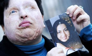 Iran acid attacker will not be blinded as victim offers dramatic pardon