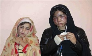 Afghan woman attacked with acid after refusing marriage